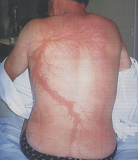 bad ass. this guy got hit by lighting and survived<br /> please front page people need to see thistop ten yay!<br /> but since you guys are looking