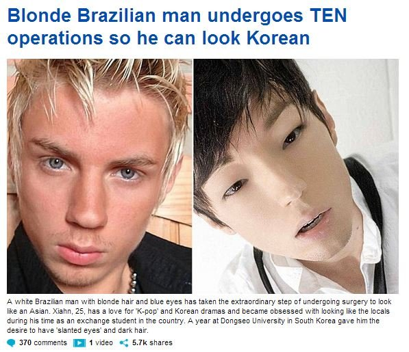 But does it improve his gaming skills?. . Blonde Brazilian man undergoes TEN operations so he can look Korean MSI. A he Brazilian man with blonds hair and blue