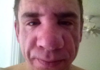 Bee sting on 27yo - BAM! Instant aging